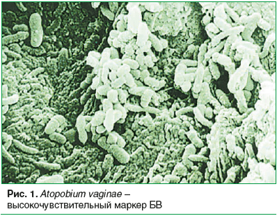 Рис. 1. Atopobium vaginae – высокочувствительный маркер БВ