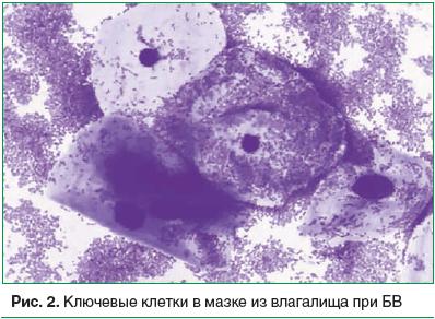 Рис. 2. Ключевые клетки в мазке из влагалища при БВ