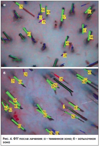 Рис. 4. ФТГ после лечения: а – теменная зона; б – затылочная зона