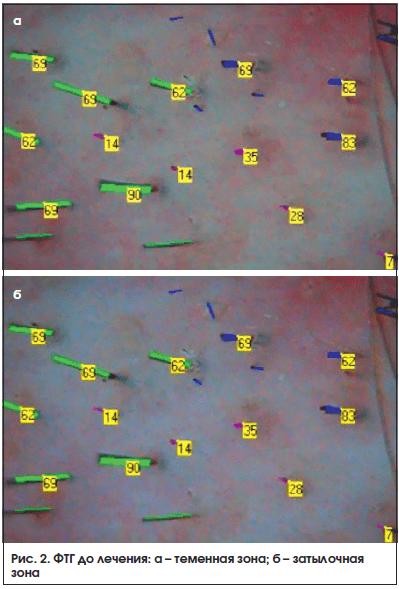 Рис. 2. ФТГ до лечения: а – теменная зона; б – затылочная зона
