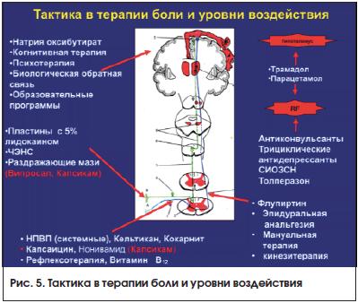Рис. 5. Тактика в терапии боли и уровни воздействия