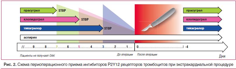 Рис. 2. Схема периоперационного приема ингибиторов P2Y12 рецепторов тромбоцитов при экстракардиальной процедуре