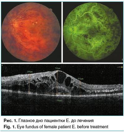 Рис. 1. Глазное дно пациентки Е. до лечения