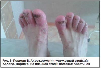 Рис. 5. Пациент В. Акродерматит пустулезный стойкий Аллопо. Поражение пальцев стоп и ногтевых пластинок