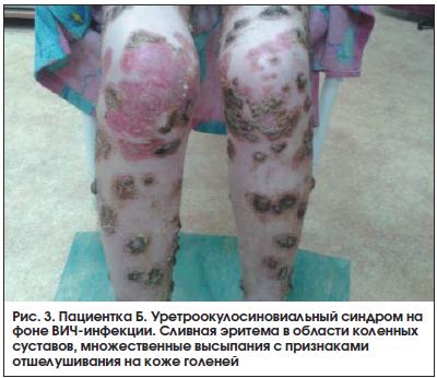Рис. 3. Пациентка Б. Уретроокулосиновиальный синдром на фоне ВИЧ-инфекции. Сливная эритема в области коленных суставов, множественные высыпания с признаками отшелушивания на коже голеней