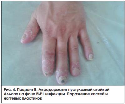 Рис. 4. Пациент В. Акродерматит пустулезный стойкий Аллопо на фоне ВИЧ-инфекции. Поражение кистей и ногтевых пластинок