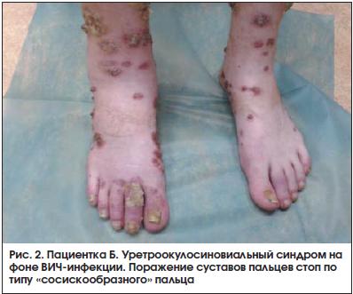 Рис. 2. Пациентка Б. Уретроокулосиновиальный синдром на фоне ВИЧ-инфекции. Поражение суставов пальцев стоп по типу «сосискообразного» пальца