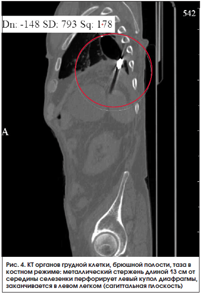 Рис. 4. КТ органов грудной клетки, брюшной полости, таза в костном режиме: металлический стержень длиной 13 см от середины селезенки перфорирует левый купол диафрагмы, заканчивается в левом легком (сагиттальная плоскость)