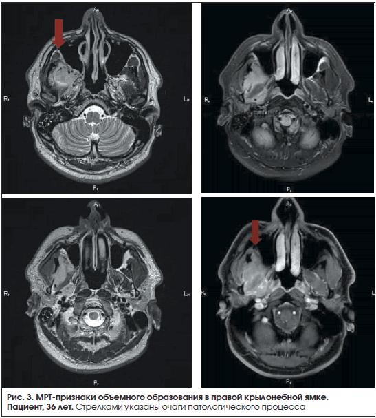 Рис. 3. МРТ-признаки объемного образования в правой крылонебной ямке.