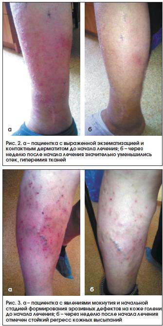 Рис. 2. а – пациентка с выраженной экзематизацией и контактным дерматитом до начала лечения; б – через неделю после начала лечения значительно уменьшились отек, гиперемия тканей