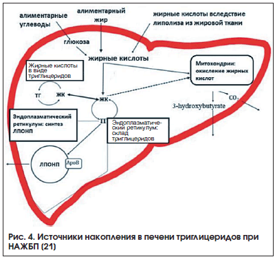 Рис. 4. Источники накопления в печени триглицеридов при НАЖБП [21]