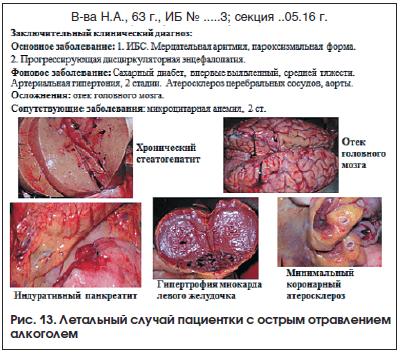 Рис. 13. Летальный случай пациентки с острым отравлением алкоголем