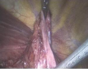Рис. 8. Фрагмент грыжевого мешка для перитонизации сетчатого импланта