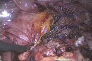 Рис. 7. Сетчатый имплант поверх сшитых диафрагмальных ножек