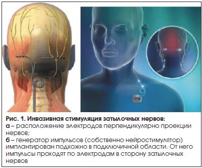 Рис. 1. Инвазивная стимуляция затылочных нервов