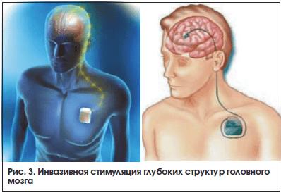 Рис. 3. Инвазивная стимуляция глубоких структур головного мозга