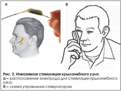Рис. 2. Инвазивная стимуляция крылонебного узла
