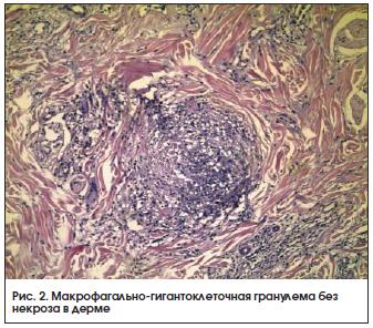 Рис. 2. Макрофагально-гигантоклеточная гранулема без некроза в дерме