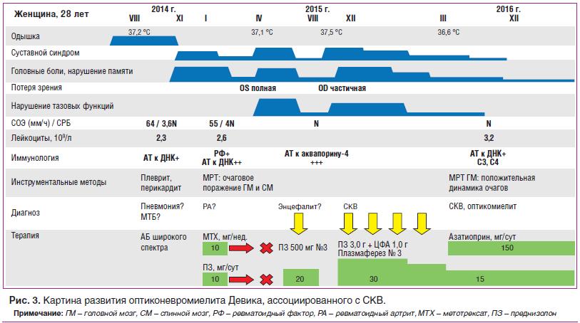 Рис. 3. Картина развития оптиконевромиелита Девика, ассоциированного с СКВ.