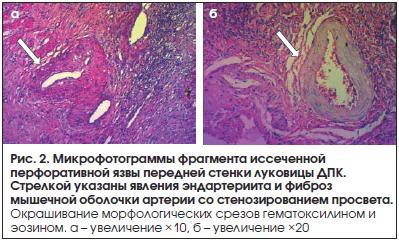 Рис. 2. Микрофотограммы фрагмента иссеченной перфоративной язвы передней стенки луковицы ДПК. Стрелкой указаны явления эндартериита и фиброз мышечной оболочки артерии со стенозированием просвета.