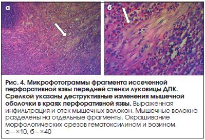 Рис. 4. Микрофотограммы фрагмента иссеченной перфоративной язвы передней стенки луковицы ДПК. Срелкой указаны деструктивные изменения мышечной оболочки в краях перфоративной язвы.