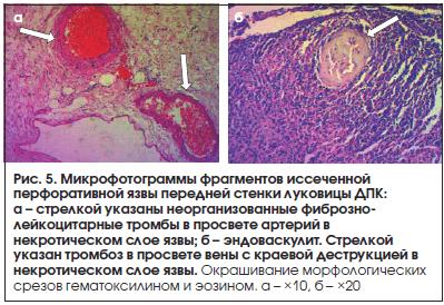 Рис. 5. Микрофотограммы фрагментов иссеченной перфоративной язвы передней стенки луковицы ДПК: а – стрелкой указаны неорганизованные фиброзно- лейкоцитарные тромбы в просвете артерий в некротическом слое язвы; б – эндоваскулит. Стрелкой указан тромбоз в п