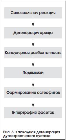 Рис. 3. Каскадная дегенерация дугоотростчатого сустава