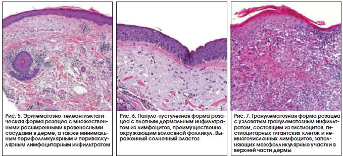 Рис. 5. Эритематозно-телеангиэктатическая форма розацеа с множественными расширенными кровеносными сосудами в дерме, а также минимальным перифолликулярным и периваскулярным лимфоцитарным инфильтратом