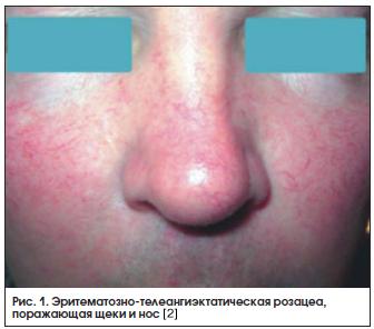 Рис. 1. Эритематозно-телеангиэктатическая розацеа, поражающая щеки и нос [2]