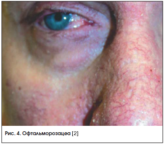 Рис. 4. Офтальморозацеа [2]