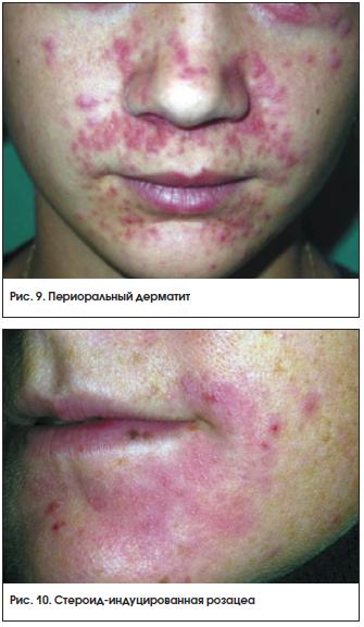 Рис. 9. Периоральный дерматит