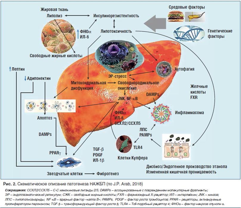 Рис. 2. Схематическое описание патогенеза НАЖБП (по J.P. Arab, 2018)