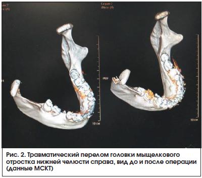 Рис. 2. Травматический перелом головки мыщелкового отростка нижней челюсти справа, вид до и после операции (данные МСКТ)