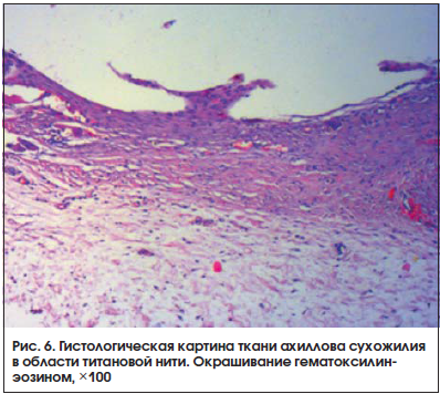 Рис. 6. Гистологическая картина ткани ахиллова сухожилия в области титановой нити. Окрашивание гематоксилинэозином, ×100
