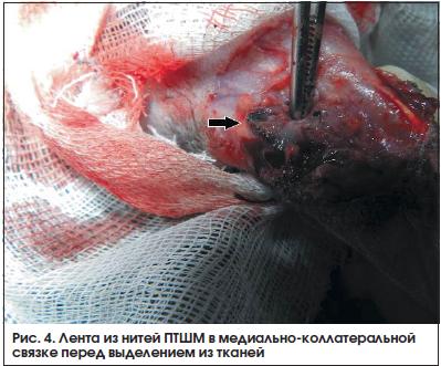Рис. 4. Лента из нитей ПТШМ в медиально-коллатеральной связке перед выделением из тканей