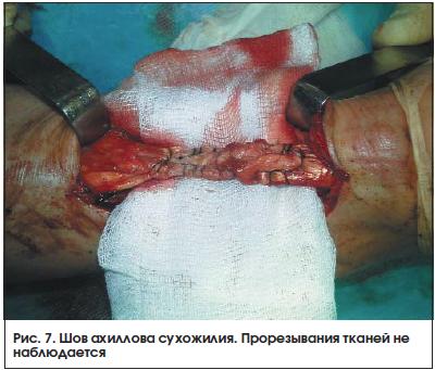 Рис. 7. Шов ахиллова сухожилия. Прорезывания тканей не наблюдается