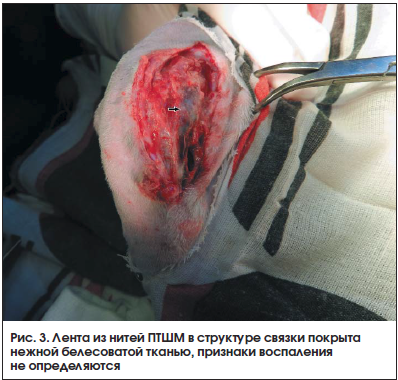 Рис. 3. Лента из нитей ПТШМ в структуре связки покрыта нежной белесоватой тканью, признаки воспаления не определяются
