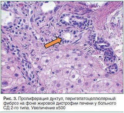 Рис. 3. Пролиферация дуктул, перигепатоцеллюлярный фиброз на фоне жировой дистрофии печени у больного СД 2-го типа. Увеличение х500