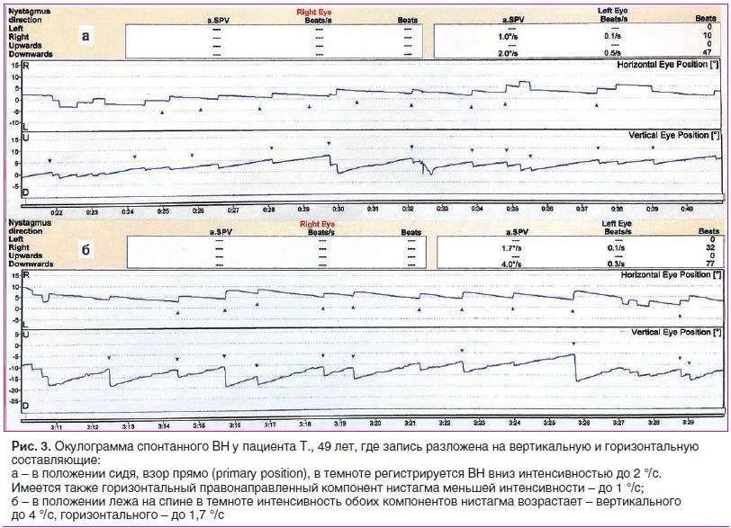 Рис. 3. Окулограмма спонтанного ВН у пациента Т., 49 лет, где запись разложена на вертикальную и горизонтальную составляющие