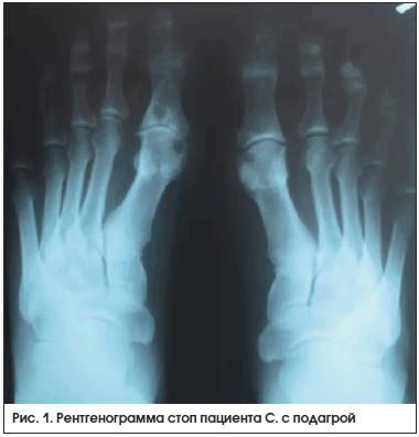 Рис. 1. Рентгенограмма стоп пациента С. с подагрой