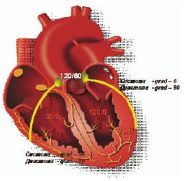 Рис. 2. Диаграмма соотношений внутримиокардиального напряжения и кровоснабжения миокарда левого и правого желудочков
