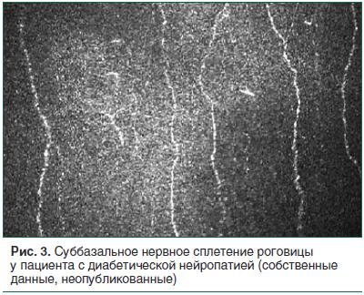 Рис. 3. Суббазальное нервное сплетение роговицы у пациента с диабетической нейропатией (собственные данные, неопубликованные)