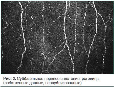 Рис. 2. Суббазальное нервное сплетение роговицы (собственные данные, неопубликованные)
