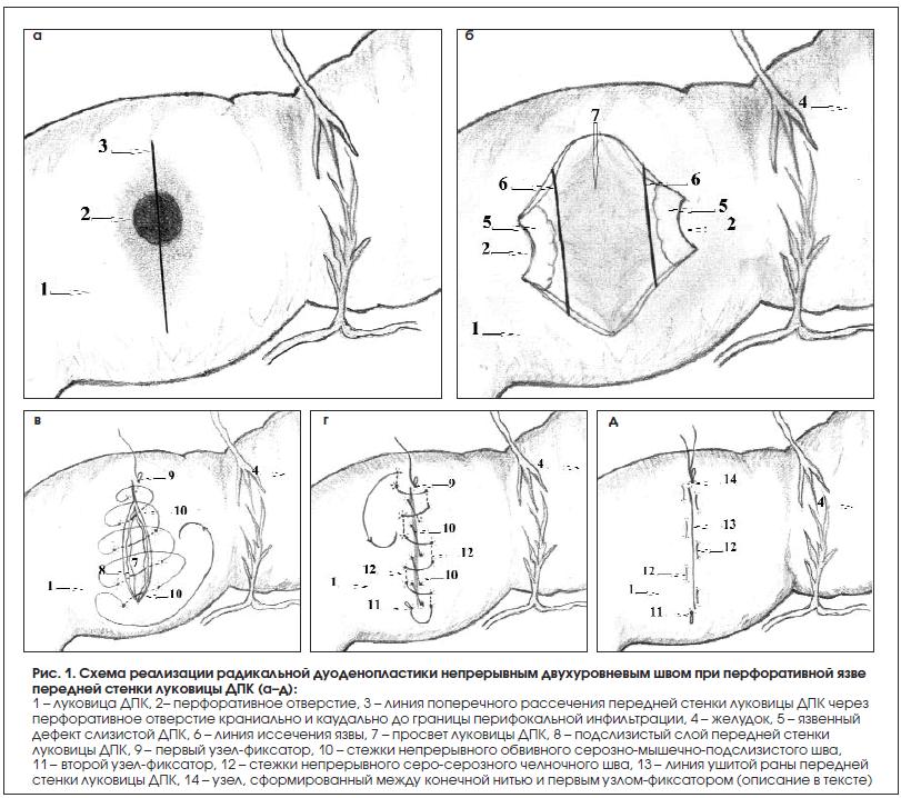 Рис. 1. Схема реализации радикальной дуоденопластики непрерывным двухуровневым швом при перфоративной язве передней стенки луковицы ДПК (а–д)