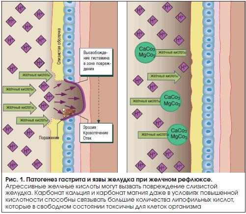 Рис. 1. Патогенез гастрита и язвы желудка при желчном рефлюксе.
