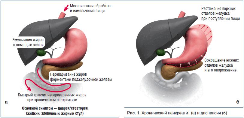 Рис. 1. Хронический панкреатит (а) и диспепсия (б)