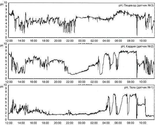 Рис. 1 Суточная рН пищевода (на 5 см выше НПС) пациента Д., 63 года