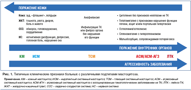 Рис. 1. Типичные клинические признаки больных с различными подтипами мастоцитоза.