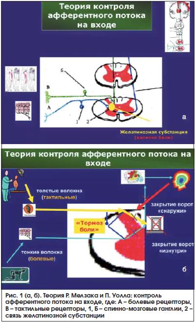 Рис. 1 (а, б). Теория Р. Мелзака и П. Уолла: контроль афферентного потока на входе, где: А – болевые рецепторы, В – тактильные рецепторы, 1, Б – спинно-мозговые ганглии, 2 – связь желатинозной субстанции