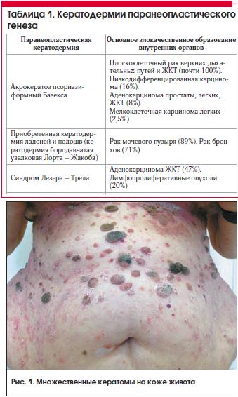 Таблица 1. Кератодермии паранеопластического генеза
